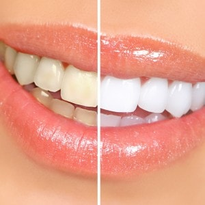 Безопасное отбеливание зубов в стоматологии