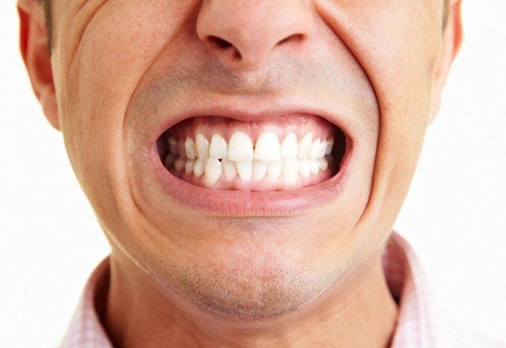 skripya-zubami-bruksizm-u-detej-i-vzroslykh